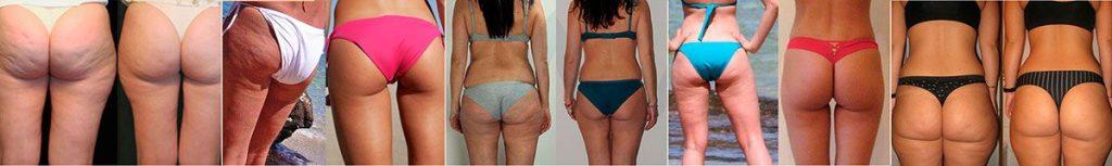gambe di ragazze prima e dopo il trattamento 2slim anticell