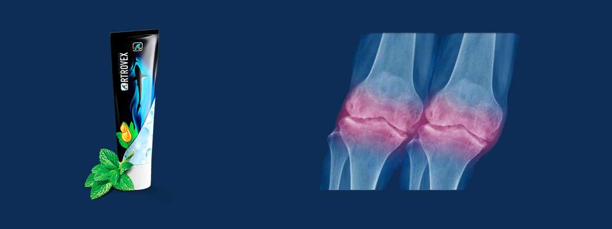 crema artrovex ossa infiammate