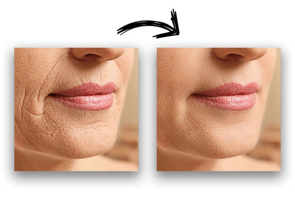 un viso prima e dopo il trattamento