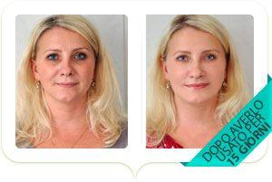 viso di donna prima e dopo il trattamento collamask