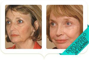 il volto di una donna dopo 20 giorni di trattamento
