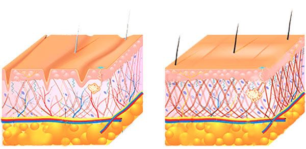 cambiamento della pelle con il passare degli anni
