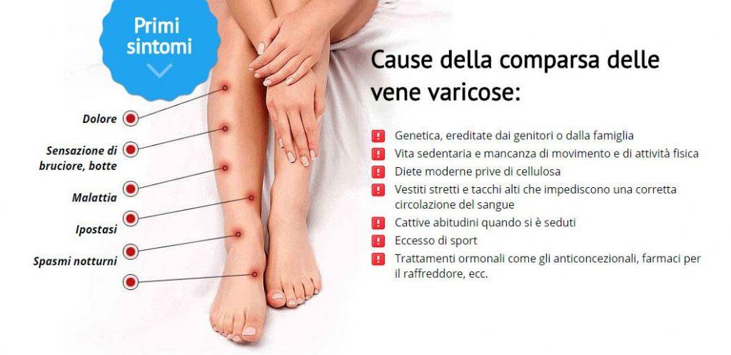 le principali cause delle vene varicose