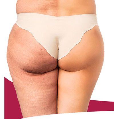 gambe prima e dopo l'uso di una crema anticellulite