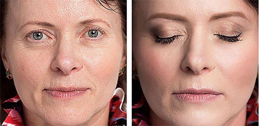 viso prima e dopo trattamento con crema antirughe