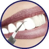 dentapulse-smacchiatore