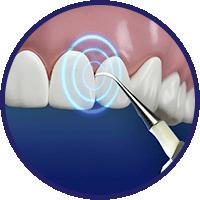 dentapulse-utilizzo