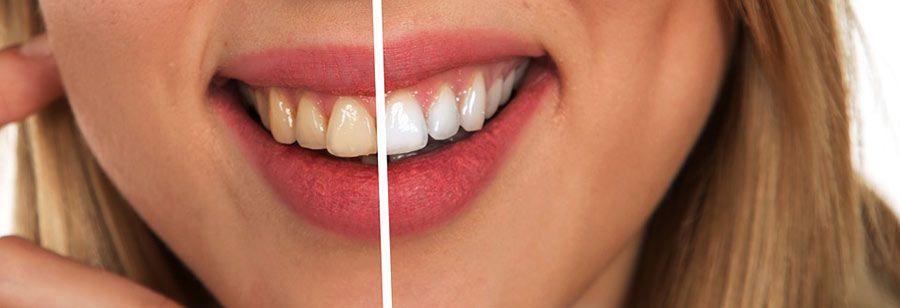 i denti prima e dopo l'uso di prodotti per sbiancare i denti