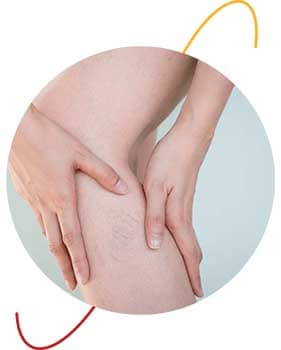 donna si tocca una gamba