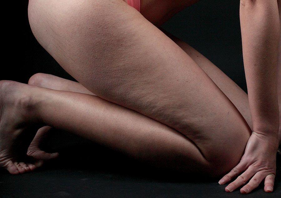 gambe con cellulite