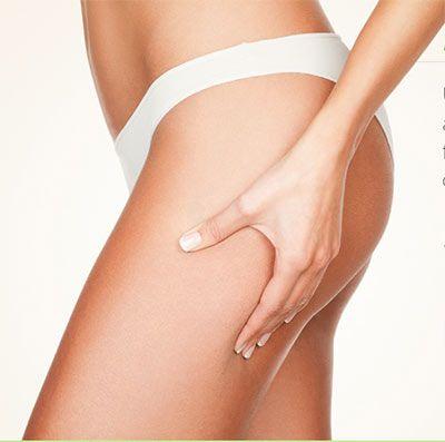 gambe prive di cellulite