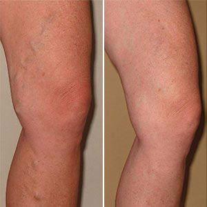 gambe con segni di vene varicose