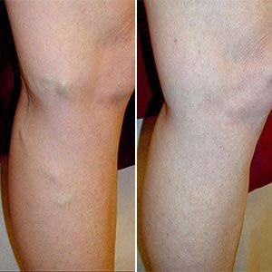 gambe post trattamento con vein stopper