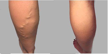 gambe prima e dopo il trattamento