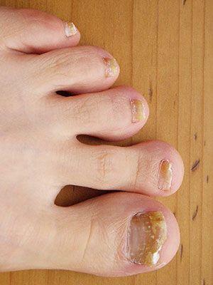 micosi alle unghie dei piedi
