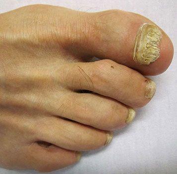 micosi alle unghie in stato avanzato