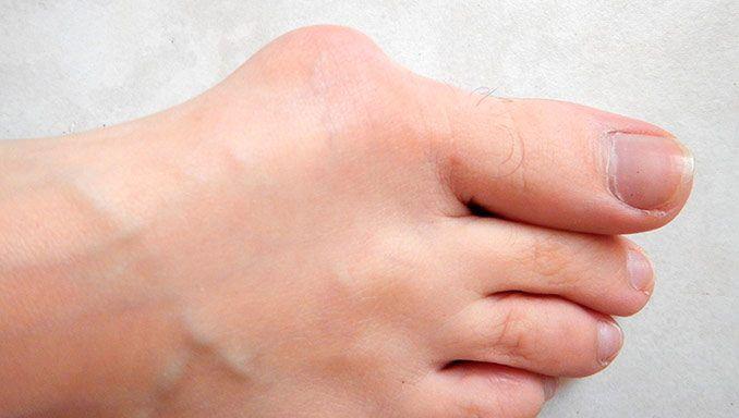 piede con patologia da alluce valgo