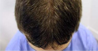 profolan-capelli