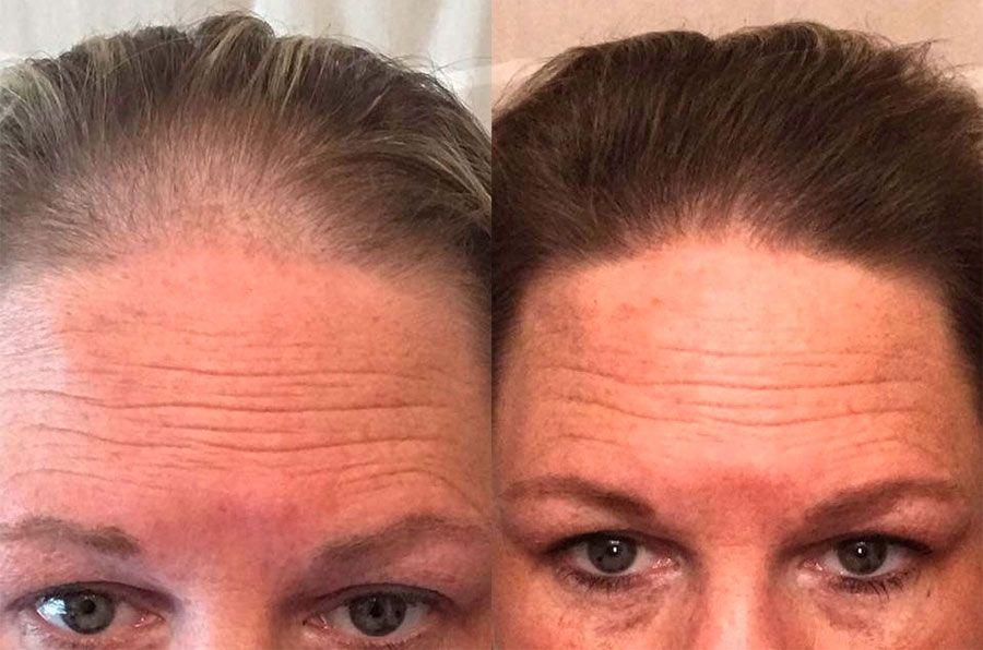la ricrescita dei capelli dopo aver utilizzato i prodotti anticaduta