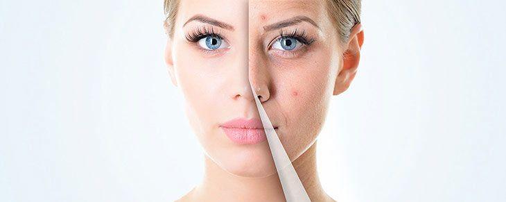 viso donna prima e dopo il trattamento con uvarò crema antirughe