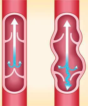 esempio di vene varicose e vene normali in infografica