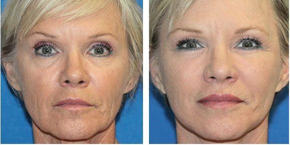 risultati del viso prima e dopo il trattamento